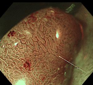 大腸内視鏡でのポリープ切除